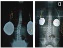 L'evoluzione della scoliosi dopo 9 mesi di trattamento.